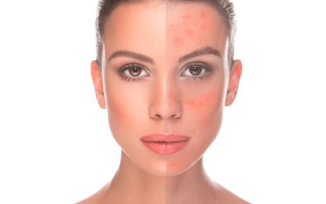 Rosacea Management Utah Dermatologic Medical Procedures