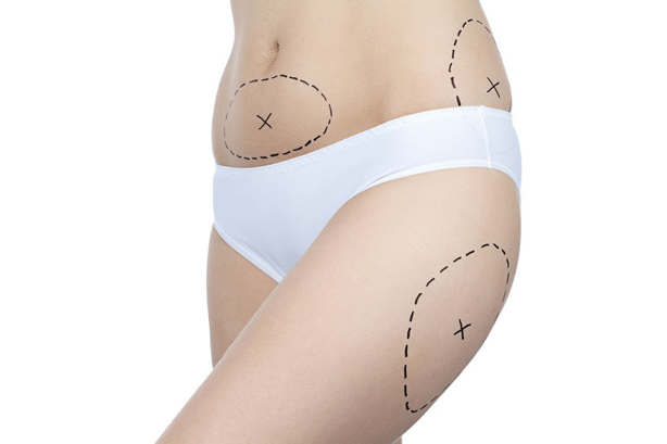 Photo of woman with problem zones on white background